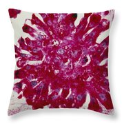 Lm Of Ewings Sarcoma, A Type Of Bone Throw Pillow by Science Source