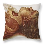 Murder Victim 1898 Throw Pillow by Science Source