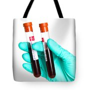 Blood Samples Tote Bag by Photo Researchers