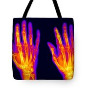 Normal Hand Tote Bag by Ted Kinsman