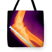 Broken Arm With Metal Pin, X-ray Tote Bag by Science Source