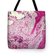 Ewing Sarcoma Tote Bag by Science Source