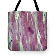 Lm Of Cardiac Muscle Tote Bag by AFIP/Science Source