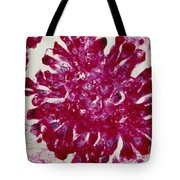 Lm Of Ewings Sarcoma, A Type Of Bone Tote Bag by Science Source