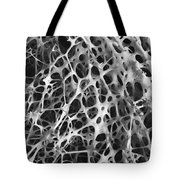 Sem Of Human Shin Bone Tote Bag by Science Source
