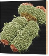 Human Chromosome, Sem Wood Print by Science Photo Library
