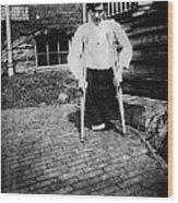 Child Labor, Frank P., Legs Were Cut Wood Print by Everett