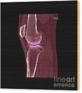 Knee Showing Osteoporosis Wood Print by Medical Body Scans