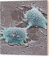 Dividing Cancer Cell, Sem Wood Print by Steve Gschmeissner