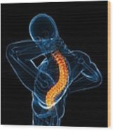 Back Pain, Conceptual Artwork Wood Print by Sciepro