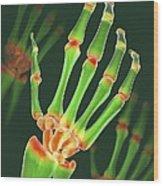 Arthritic Hand, X-ray Artwork Wood Print by David Mack
