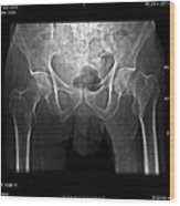 Hip Fracture, Digital X-ray Wood Print by Du Cane Medical Imaging Ltd