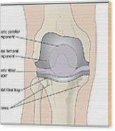 Knee After Knee Replacement, Artwork Wood Print by Peter Gardiner