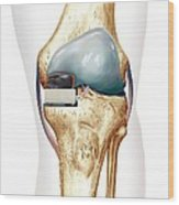 Partial Knee Replacement, Artwork Wood Print by D & L Graphics