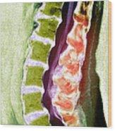 Spine Degeneration, Mri Scan Wood Print by Du Cane Medical Imaging Ltd