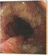 Ulcerative Colitis In The Sigmoid Colon Wood Print by Gastrolab