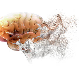 Brain Disease by Christian Darkin