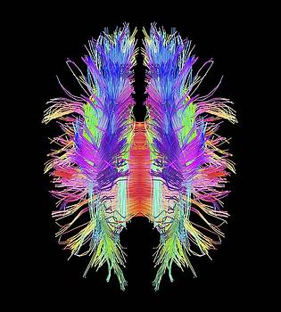 White matter fibres and brain, artwork by Science Photo Library
