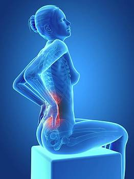 Human Back Pain by Sebastian Kaulitzki
