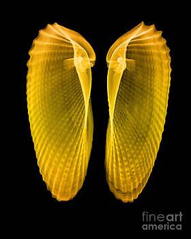 Bert Myers - Clam Shells X-ray