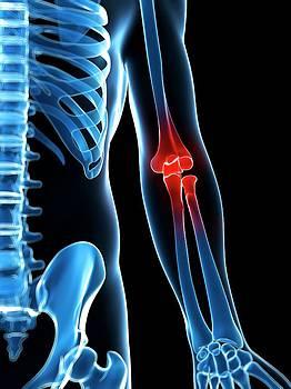 Human Elbow Pain by Sebastian Kaulitzki