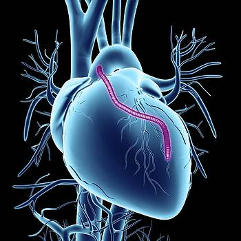 Heart Bypass Graft by Alfred Pasieka
