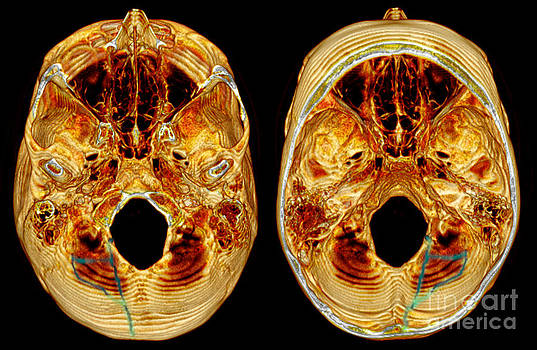 Scott Camazine - 3d Ct Reconstruction Of Skull Fracture