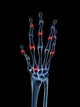 Arthritic Hand by Sebastian Kaulitzki
