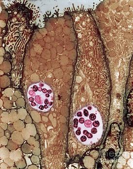 David M Phillips - Chlamydia Infection Tem