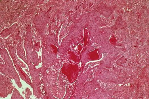Oesophageal Cancer by Cnri