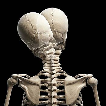 Human Head Bending Sideways by Sebastian Kaulitzki