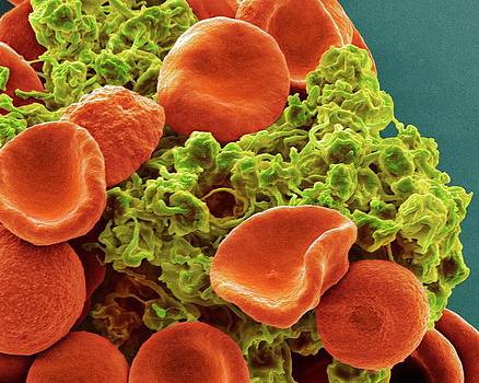 Red Blood Cells And Platelets by Steve Gschmeissner