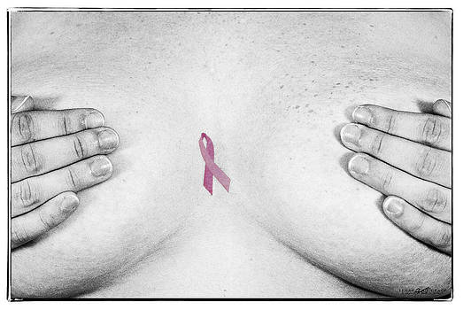 Breast Cancer Awarness by Douglas Burrell
