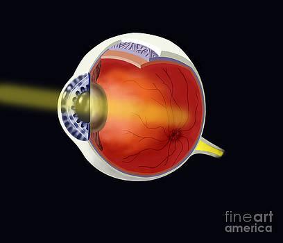 Spencer Sutton - Eye