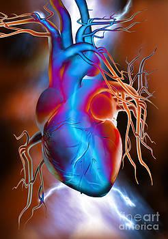 Mike Agliolo - Heart Attack