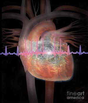 Jim Dowdalls - Heart With An Erratic Ekg