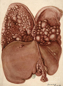 Wellcome Images - Liver And Diaphragm Cancer Growths