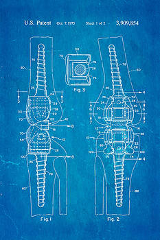 Martinez Knee Implant Prosthesis Patent Art 1974 Blueprint by Ian Monk