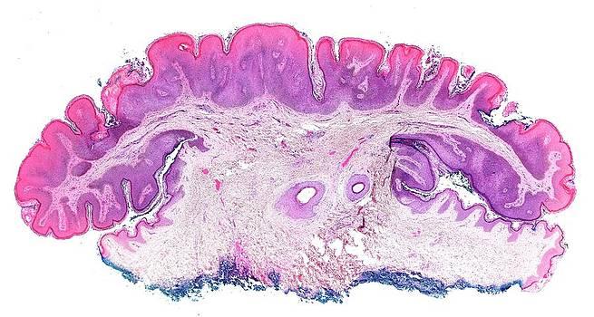 Seborrhoeic Keratosis by Microscape