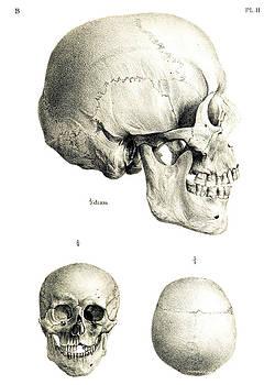 John Cardamone - Skulls