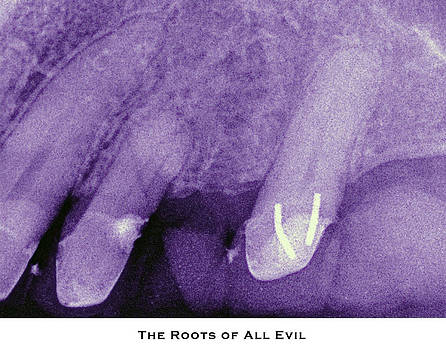 The Roots of All Evil by Lorenzo Laiken