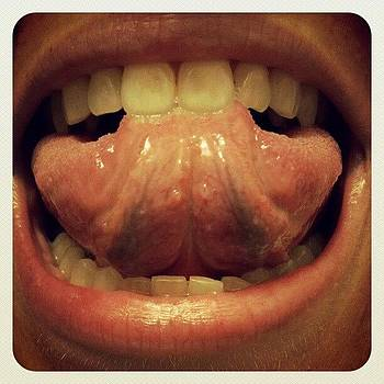 Weird Tongue Bumps. Don't Hurt But Are by Anne Simon