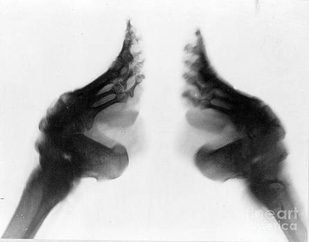 Science Source - Bound Feet X-ray