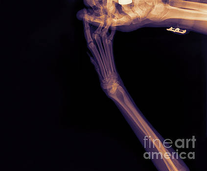 X-ray of a dog's front left leg by Yael Rosen