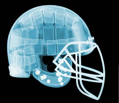 Ted Kinsman - Football Helmet X-ray