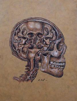 Anatomy of a Schizophrenic by Joe Dragt
