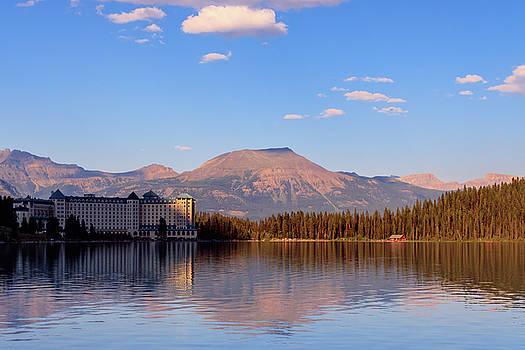 Chateau Lake Louise by William Cruz