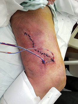 Healing leg wound with stitches and drain by Lon Casler Bixby