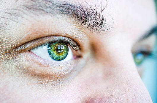 Peter has Beautiful Eyes by Kelly Anderson