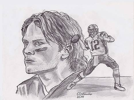 Chris  DelVecchio - Tom Brady